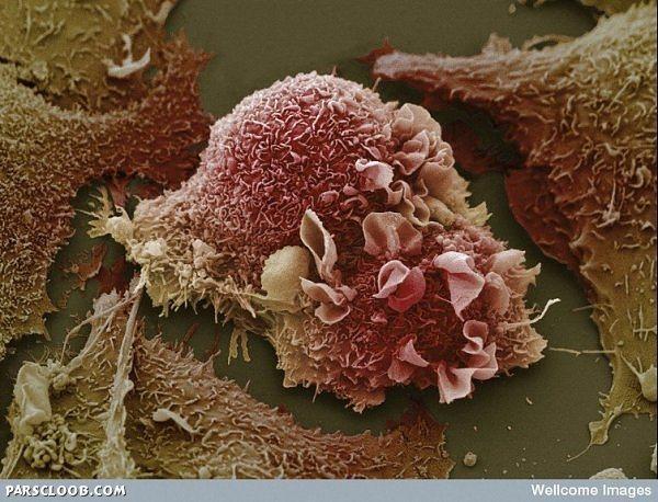 سلولهای سرطانی ریه (با عکس قبلی ریه مقایسه کنید)