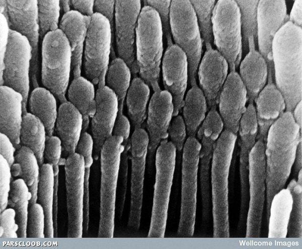 ریشه های مو درون گوش